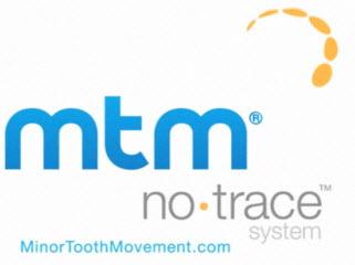 """יישור שיניים פנימי ללא גשר חיצוני במרפאת ד""""ר אוריאל בלוך רופא שיניים מומחה ליישור שיניים"""