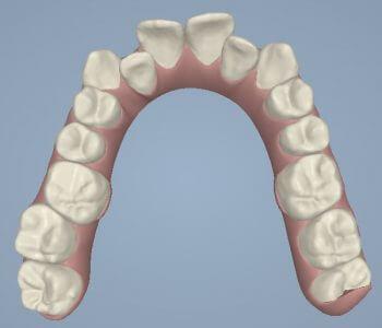 יישור-שיניים-שקוף-גלריה-לפני-טיפול