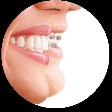 אינויזליין-יישור-שיניים-בלתי-נראה