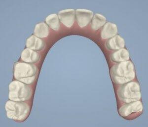 יישור-שיניים-שקוף-גלריה-אחרי-טיפול