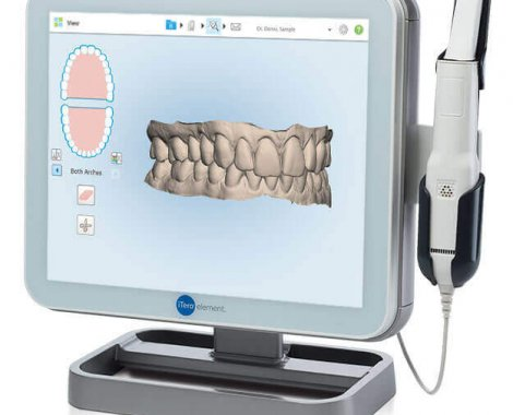 יישור שיניים הדמייה תלת מימד דר בלוך אוריאל