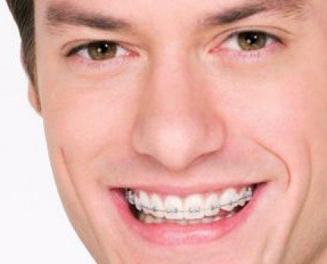 """מטופל מרפאת יישור שיניים ד""""ר אוריאל בלוך"""