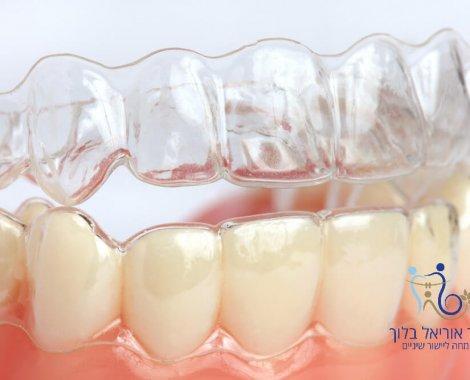 """יישור שיניים ללא גשר מטופל מרפאת ד""""ר אוריאל בלוך קשת איויזליין"""